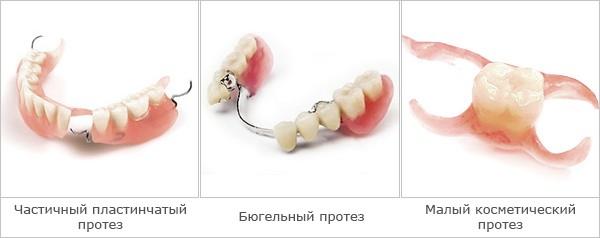 Рисунок 2 Частичные съемные акриловые зубные протезы [21]