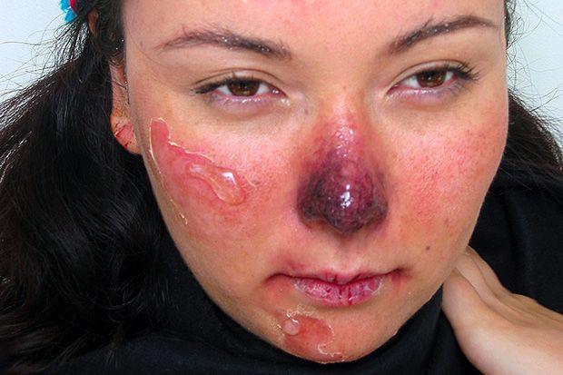 https://www.dr.arut.ru/wp-content/uploads/2015/08/obmorozhenie-litsa.jpg