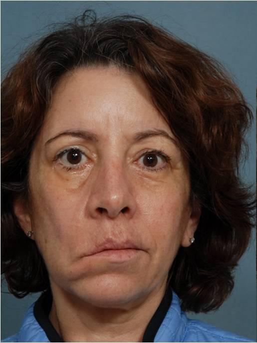 врожденный неврит лицевого нерва фото счет диджеев согласен