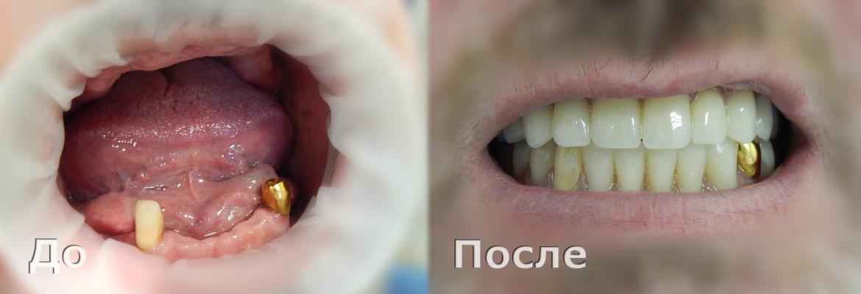 Полная потеря зубов