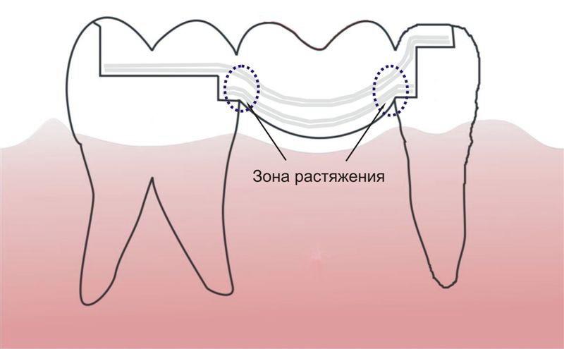 Рис.6. Адгезивный мостовидный протез по методике Ервандяна А.Г.
